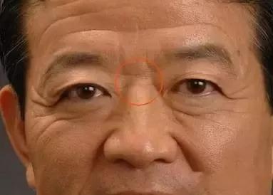 鼻梁上有横纹的面相好吗 鼻梁鼻梁有横纹面相分析